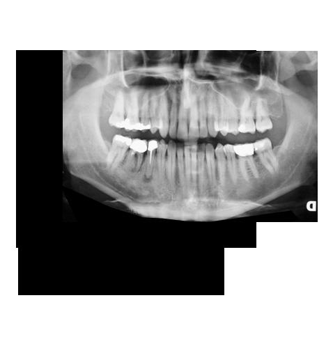ortopanoramica - radiografia arcata dentaria