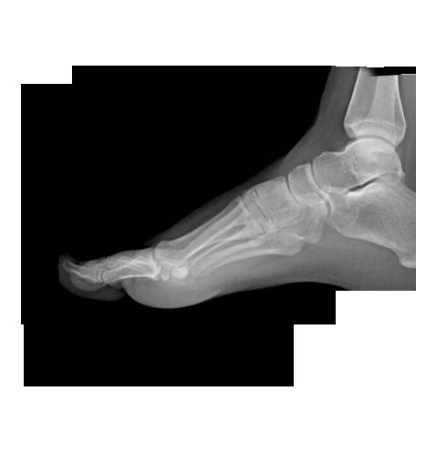 rx piede - radiografia piede