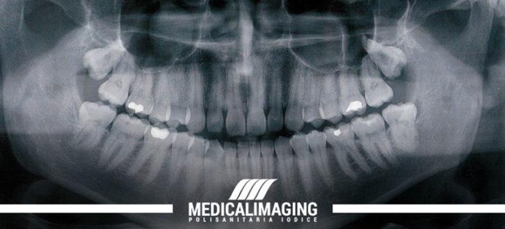 RX ortopanoramica: quello che c'è da sapere