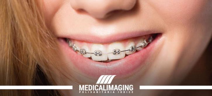 Un alleato per l'igiene orale: l'apparecchio ai denti