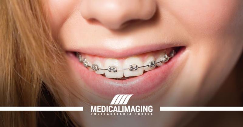 apparecchio ai denti ortopanoramica