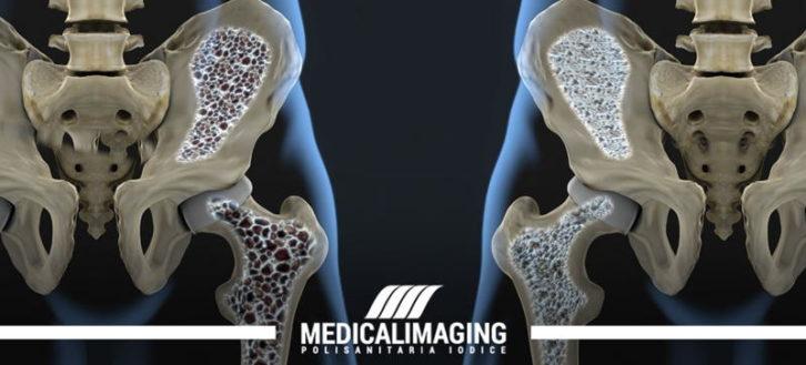 Mineralometria ossea computerizzata per la diagnostica dell'osteoporosi