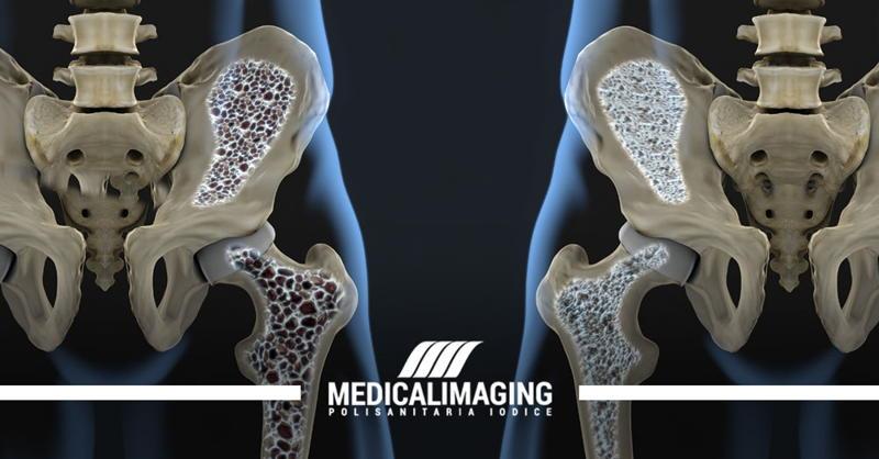 osteoporosi moc