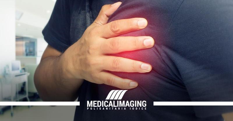 angina pectoris cardiologo