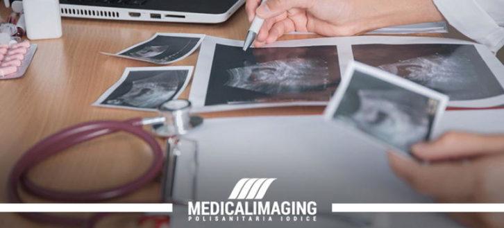 Utero retroverso: individuazione tramite ecografia ginecologica