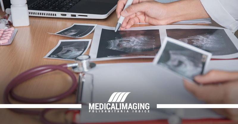 utero retroverso ecografia ginecologica