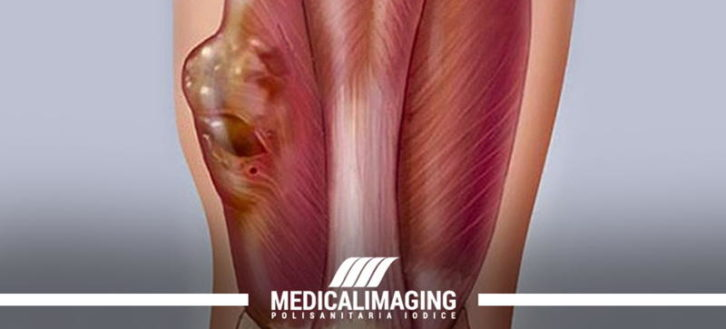 Sarcoma dei tessuti molli: le prime indagini tramite ecografia