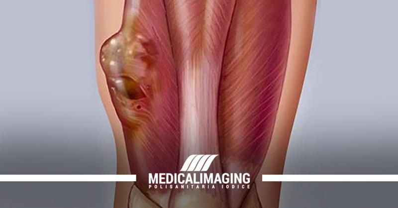 ecografia tessuti molli sarcoma