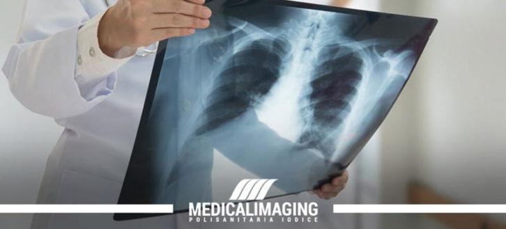 Bronchite: quando fare una radiografia al torace?