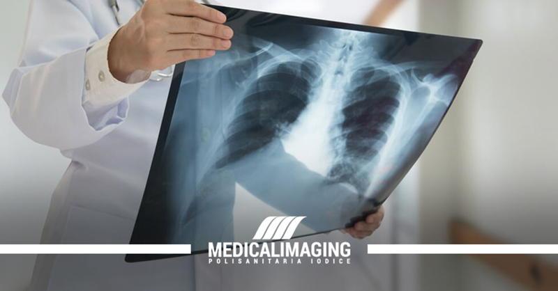 Radiografia torace per bronchite