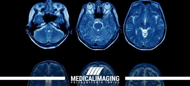 RMN all'encefalo in caso di ictus: cosa c'è da sapere