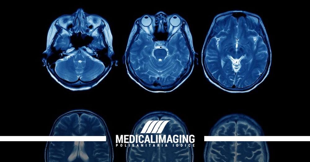 risonanza magnetica encefalo senza contrasto cosa vede