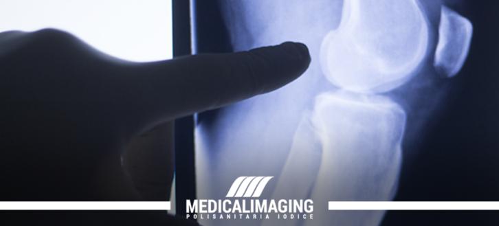 Quando fare la risonanza magnetica al ginocchio?