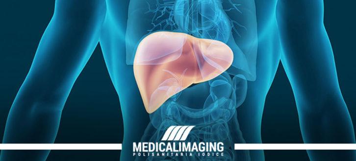 Steatosi epatica: quando l'ecografia al fegato diventa necessaria