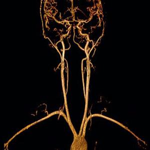 Angio Risonanza Magnetica