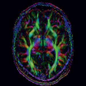 Risonanza Magnetica Cervello