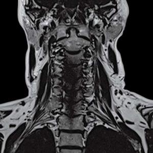 Risonanza Magnetica Cervicale