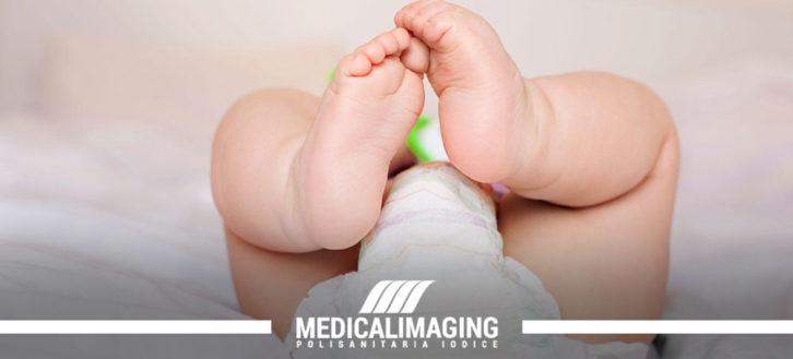 Lussazione congenita, quando fare l'ecografia alle anche del neonato