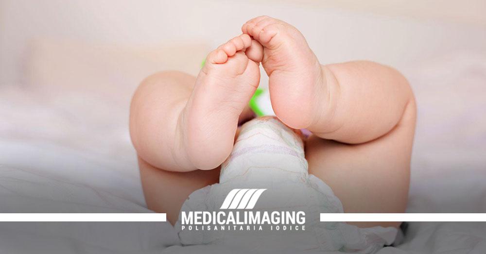 displasia ecografia anche neonato