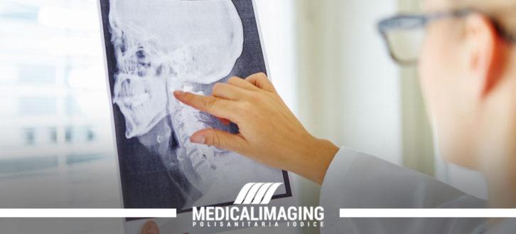 Chirurgia maxillo facciale: l'esame diagnostico con TAC Cone Beam Dentalscan