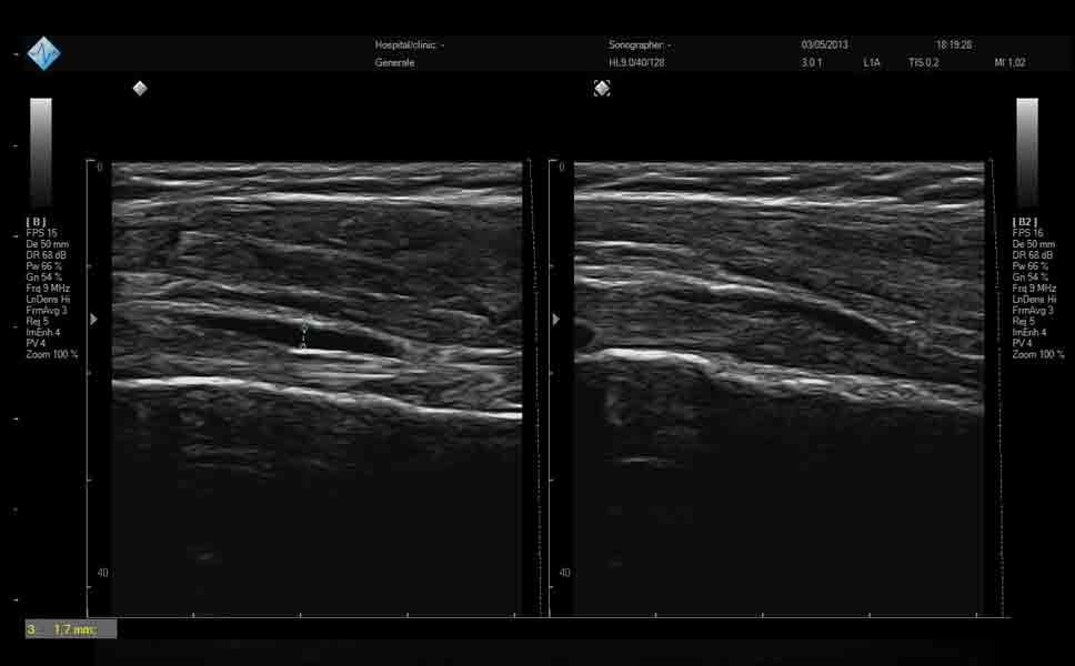 Ecografia muscolo tendinea