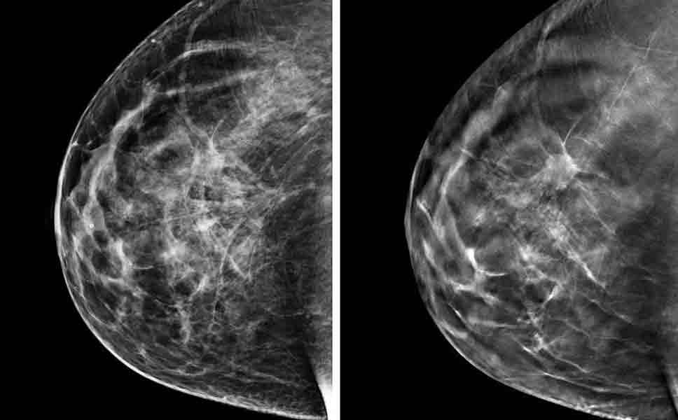 Immagini di una mammografia