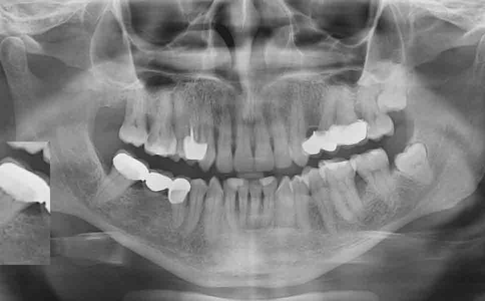 Immagine di un'ortopanoramica