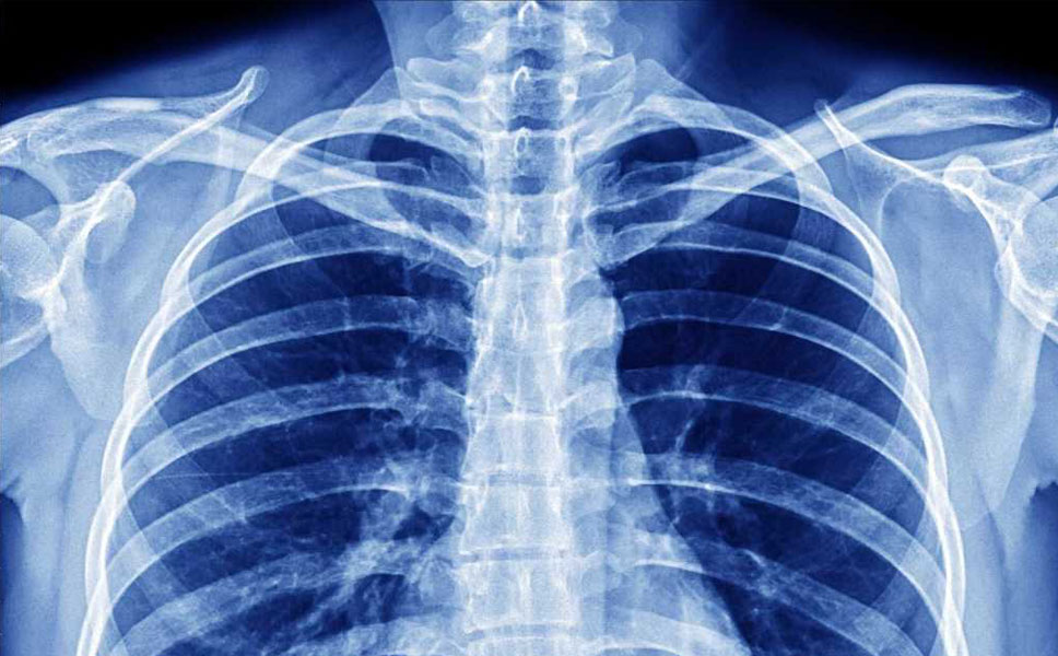 Immagine di una radiografia del torace