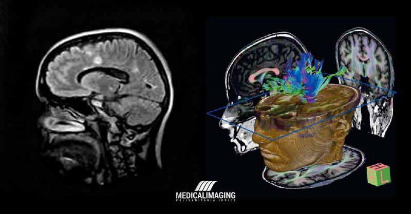 Confronto Risonanza Magnetica Aperta e Chiusa Encefalo