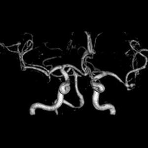 Risonanza Magnetica Aperta Encefalo