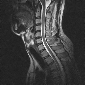 Risonanza Magnetica Aperta Colonna Cervicale