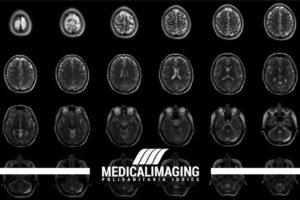 rm encefalo diagnosi sclerosi