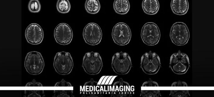 La risonanza magnetica encefalo nella diagnosi della sclerosi multipla