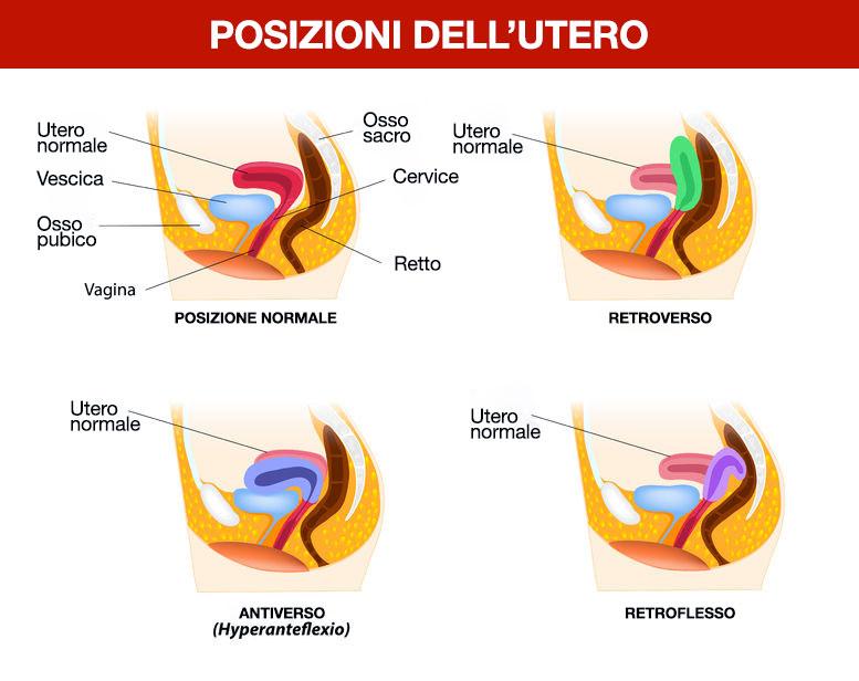 Posizioni dell'utero
