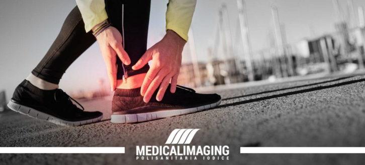 La radiografia del piede per valutare una distorsione alla caviglia
