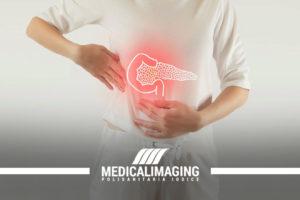 Tumore al pancreas sintomi e diagnosi