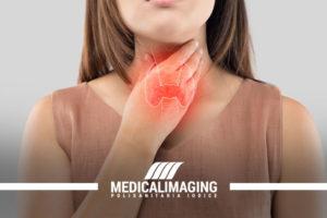 Titoide patologie e diagnosi