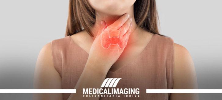 Tiroide e sue patologie: come capire se la ghiandola funziona correttamente