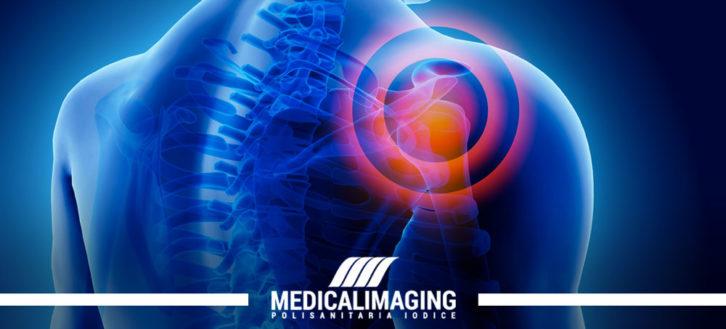Infiammazione della cuffia dei rotatori: sintomi e diagnosi
