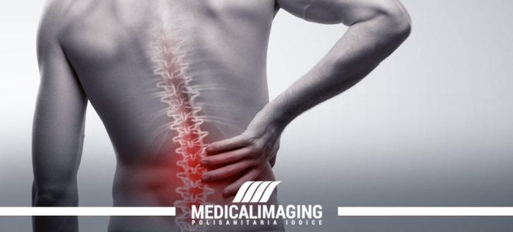 Mal di schiena: quando consultare un medico