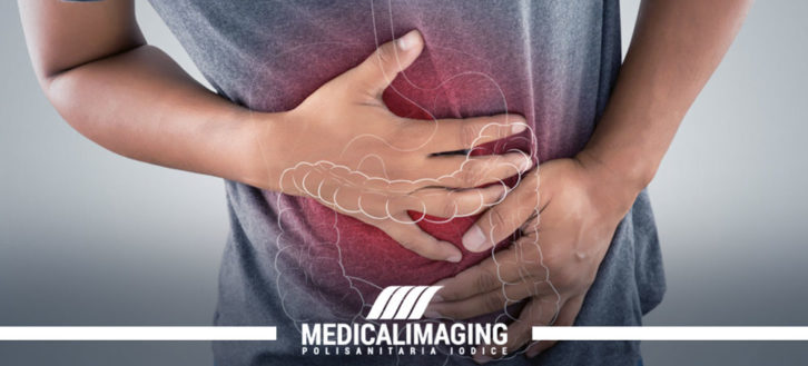Morbo di Crohn: sintomi, diagnosi e cura