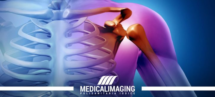 Lussazione della spalla | Cosa fare quando accade