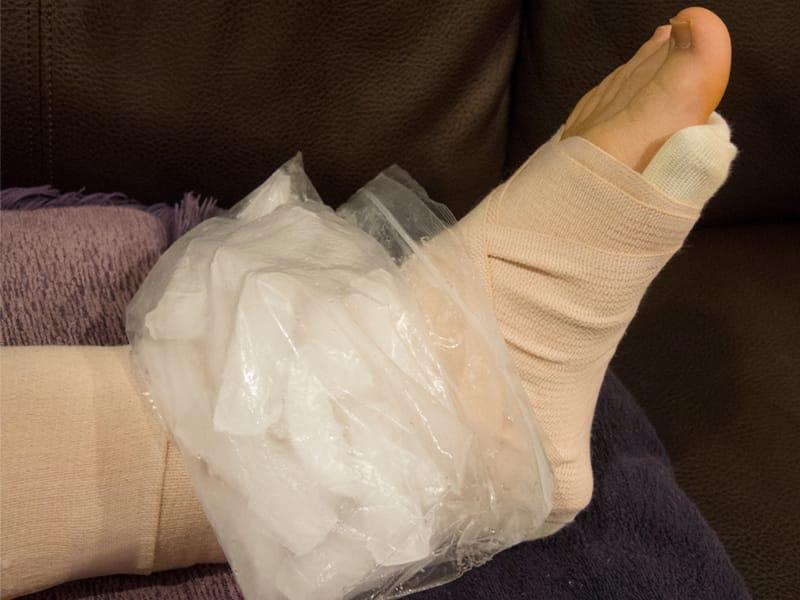 Applicazione di ghiaccio su caviglia slogata